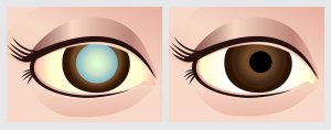 Understand Cataract Basics from Gerstein Eye Institute of Chicago