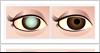 Gerstein Eye Institute Cataract Basics in Chicago