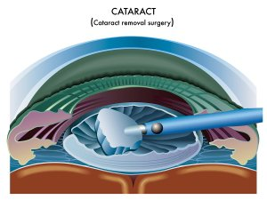 Gerstein Eye Institute Cataract Surgery Process in Chicago