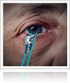 Book an Appointment for Custom Cataract Surgery at Chicago's Gerstein Eye Institute